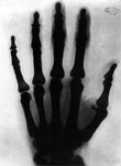 One of the oldest X-Ray photographs known - an X-Ray of Tesla's hand